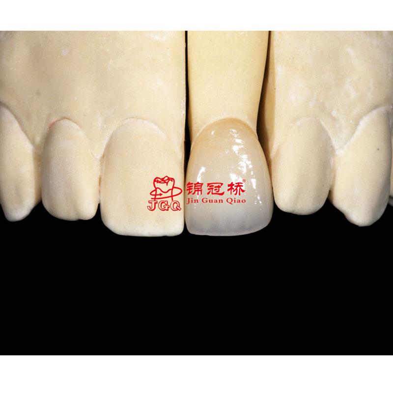 IPS E.max 易美全瓷牙