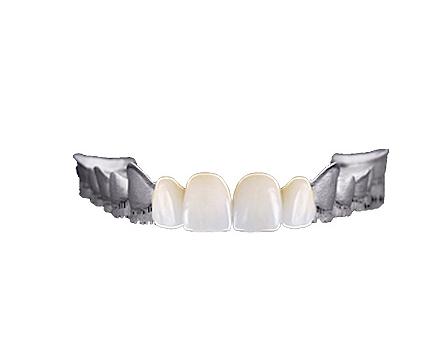 激光3D生物烤瓷牙